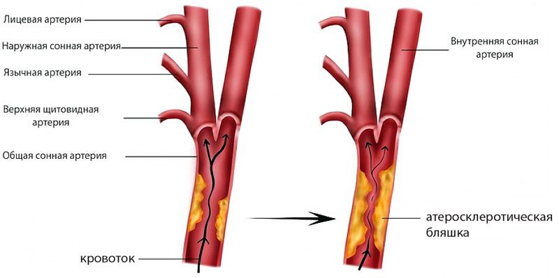 Атеросклероз сосудов брахиоцефальной зоны thumbnail
