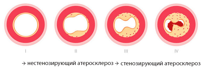 Проявление атеросклероза брахиоцефальных артерий thumbnail