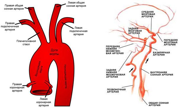 Признаки атеросклероза брахиоцефальных артерий что это такое thumbnail