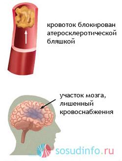 Что означает атеросклероз брахиоцефальных артерий thumbnail