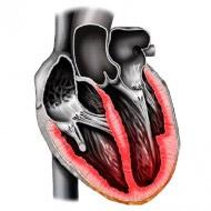 Колит в области сердца у человека thumbnail