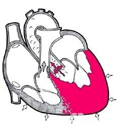 Гипертензия левого желудочка сердца что это такое