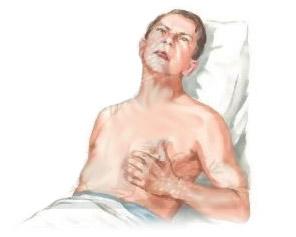 Тромбоэмболические осложнения, ВТЭО: причины, риски, лечение, профилактика