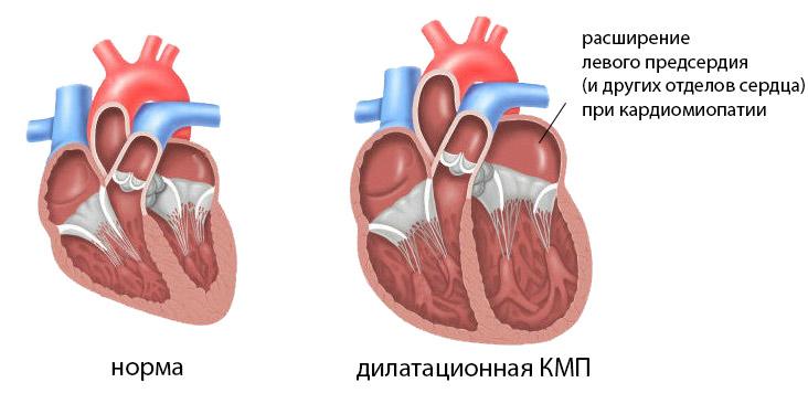 Гипертрофия левого предсердия сердца