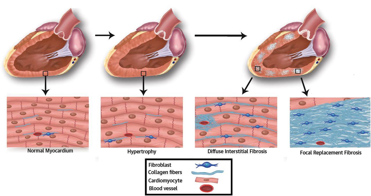 Острая сердечная недостаточность кардиосклероз сердца -