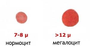 Мегалобластная анемия признаки