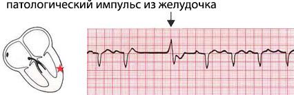 При перебоях сердца что применять
