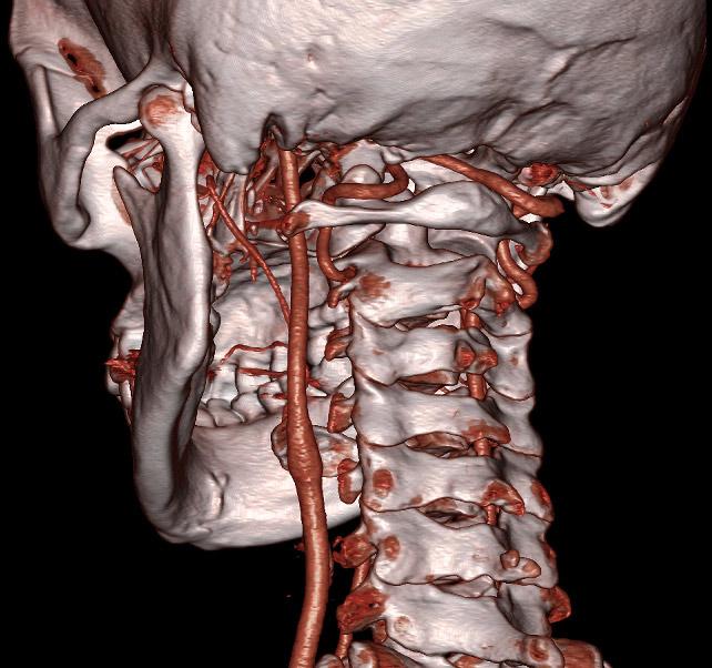 Результаты уздг сосудов головы и шеи