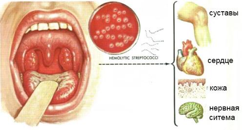 Острый ревматизм симптомы лечение признаки причины острая ревматическая лихорадка