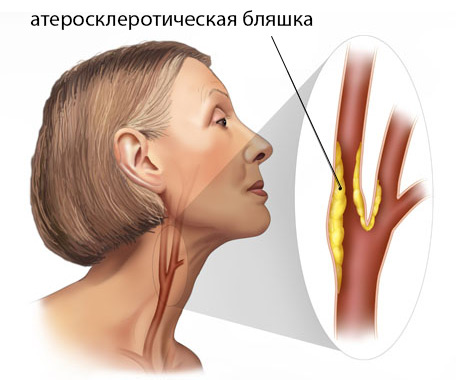Шейный атеросклероз ⋆ Лечение Сердца