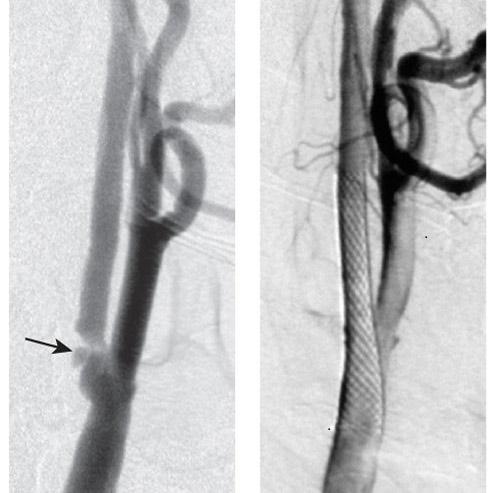 сонная артерия до и после стентирования