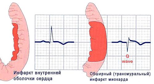Нетрансмуральный инфаркт что это такое