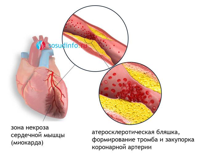 Инфаркт миокарда у пожилых людей ⋆ Лечение Сердца