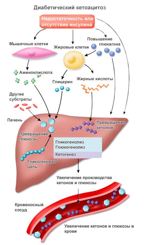 Признаки кетоацидоза