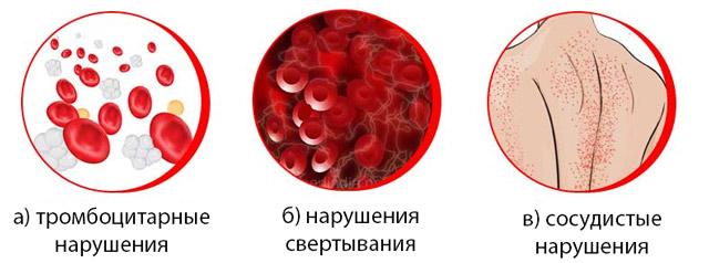 Геморрагический диатез лечение