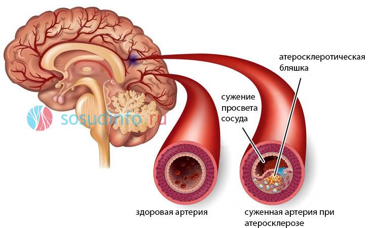Признаки церебрального атеросклероза
