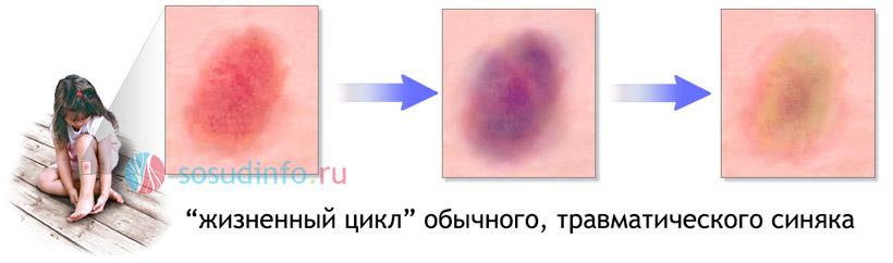 Причины и лечение кровоизлияний на коже. Чем лечить подкожные кровоизлияния